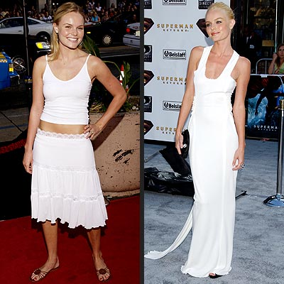 kate bosworth anorexic