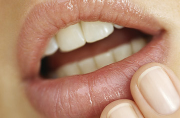 home remedies for blisters inside mouth