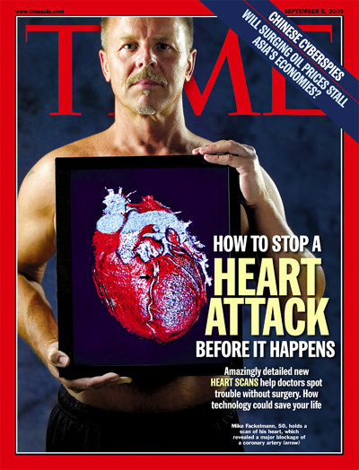 A photograph of a man holding a diagram of the human heart up to his chest.