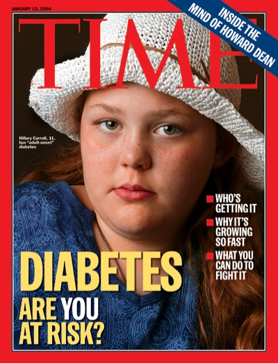 A photograph of a young girl with Diabetes