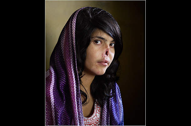 Aisha, disfigured as punishment for fleeing her husband in Afghanistan