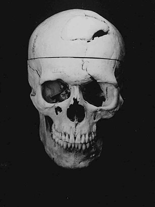 phineas p gage essay Phineas gage, the most famous case of prefrontal damage and resulting  behavior that first revealed a connection between impaired rationality and  specific brain.
