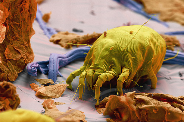 A gallery of close-ups of the pests who inhabit our homes, clothes and bodies.