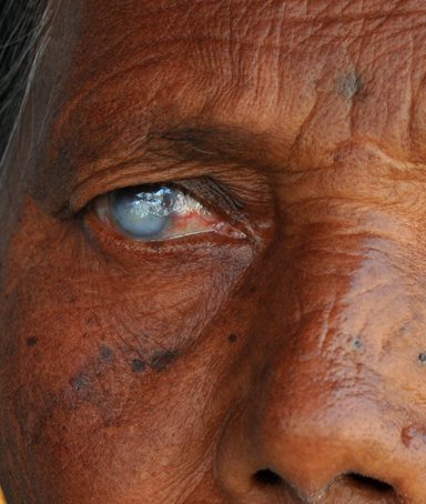 A picture shows the eyes of a woman blind in the right eye during a free eye check-up at Addagutta slum on the eve of World Sight Day in Hyderabad on October 14, 2010