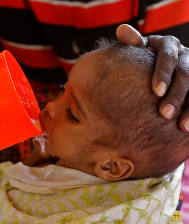 A man feeds his child at a field hospital run by the International Rescue Committee (IRC) in Dadaab, Kenya, Monday, Aug 1, 2011.