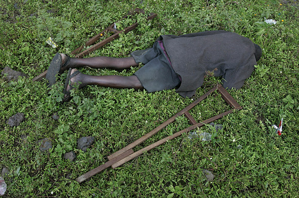 An exhausted man lies in the grass in a camp for displaced people near Goma, Congo.