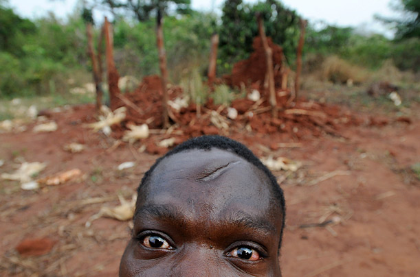 A man scarred from a machete sits outside a destroyed house in northeast Congo.